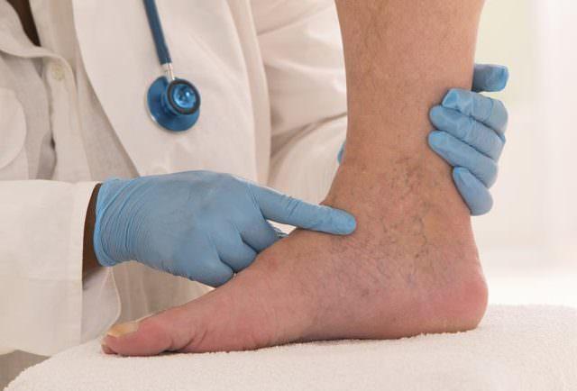 Подготовка к ампутации ноги