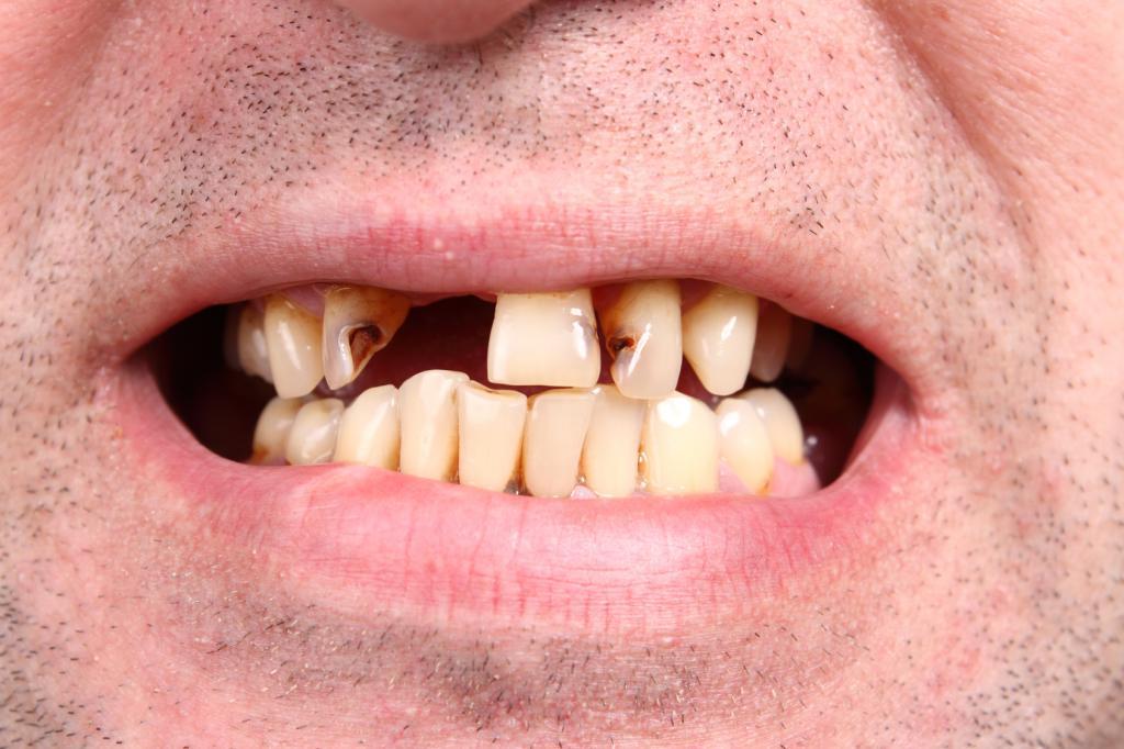 Сгнил верхний зуб передний во сне
