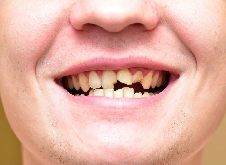 Сломанные зубы у мужчины