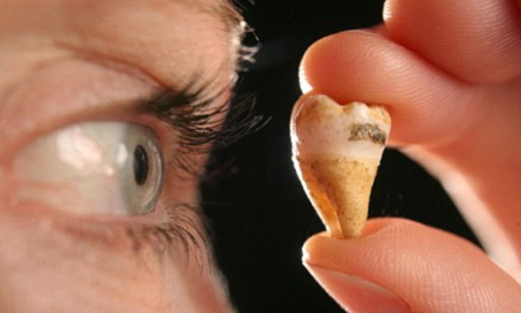 К чему снится выпал гнилой зуб: что предвещает, значение сновидения