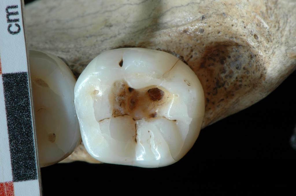 Больной зуб у скелета
