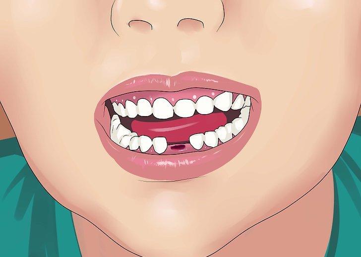 К чему снится когда во сне вырывают зуб thumbnail