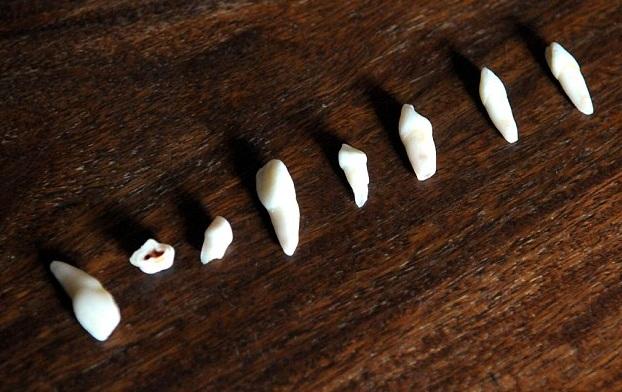 Выпавшие зубы