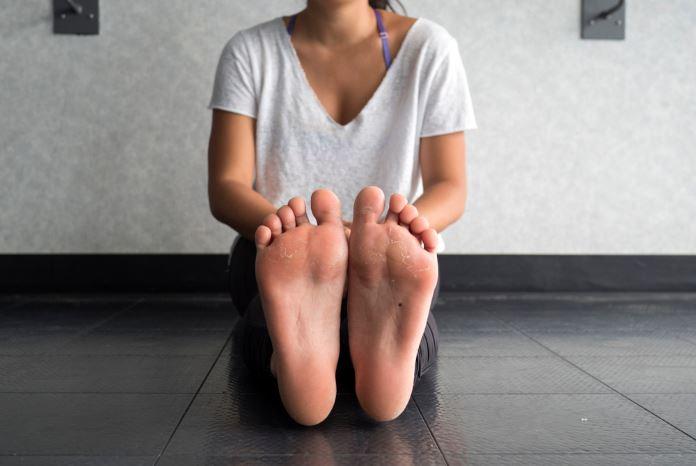К чему снятся мозоли на ногах: выбор сонника, значение и ...