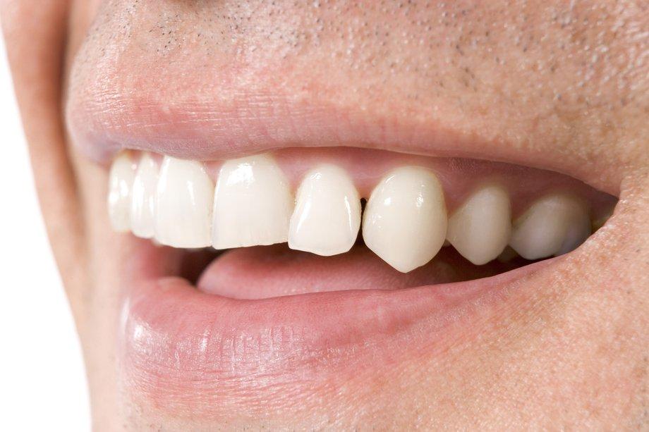 К чему снится когда выпадают нижние зубы