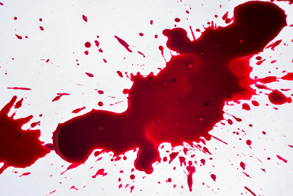 к чему снится собственная кровь